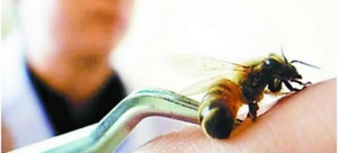 Какие болезни лечат пчелы: показания и противопоказания апитерапии