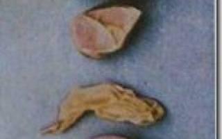 Вирус инфекционного бронхита у кур